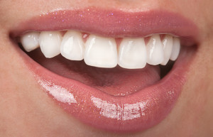 Healthy female mouth, teeth and beautiful lips
