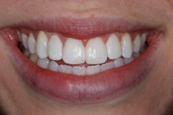 Whiten or Bleach Discolored Tooth smile Greenwood Village cosmetic dentist