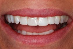 Best smile Cosmetic Dentistry Greenwood Village