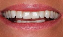 smile Cosmetic Dentist Greenwood Village