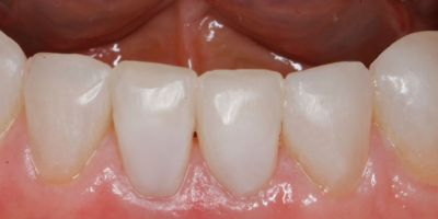 tooth colored white fillings on lower teeth smile Greenwood Village