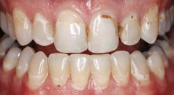 How to fix Cavities with tooth colored fillings best Denver cosmetic dentist