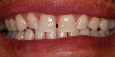 smile tooth gaps with dental veneers and tooth whitening Greenwood Village