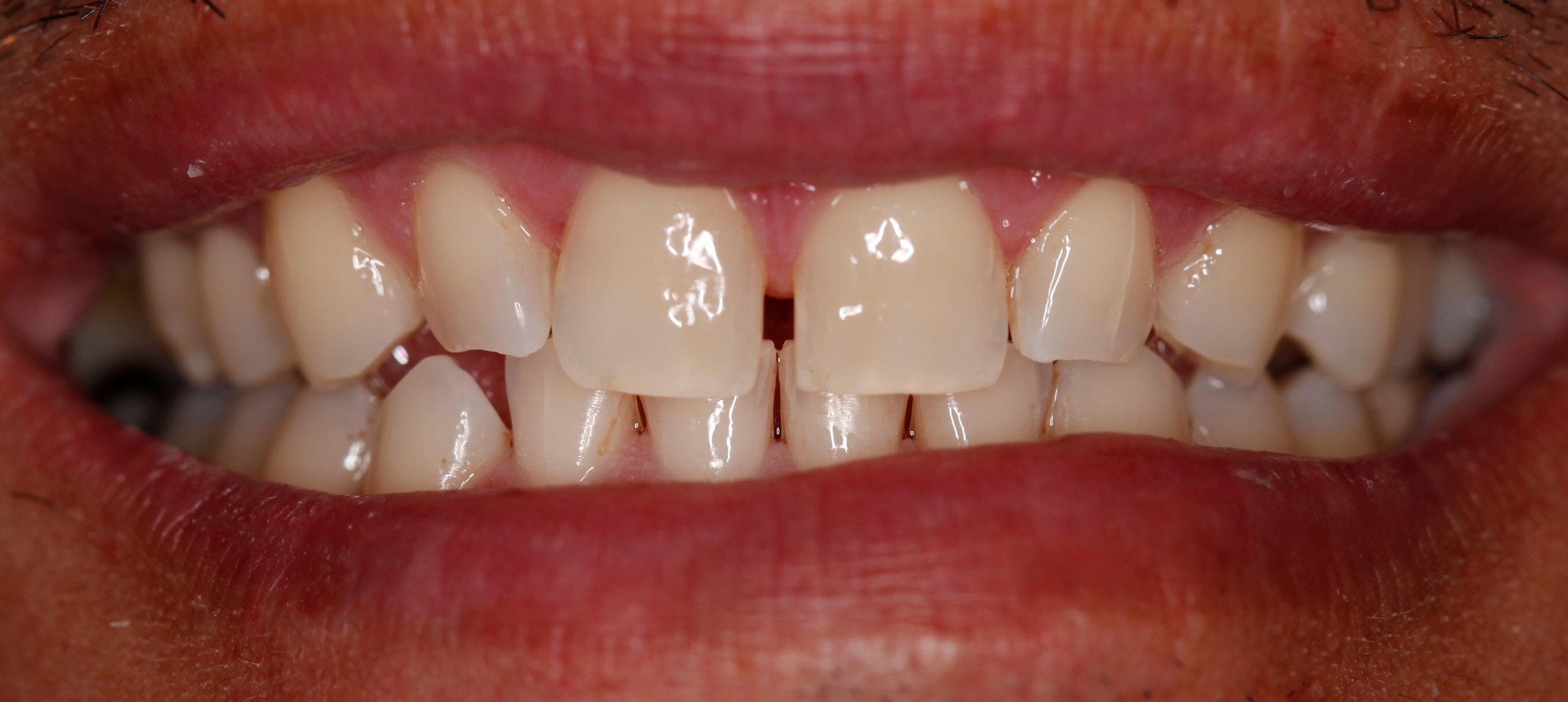 Close tooth gaps with dental veneers and tooth whitening best cosmetic dentist Greenwood Village