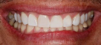 Smile Fix tooth gaps with Greenwood Village