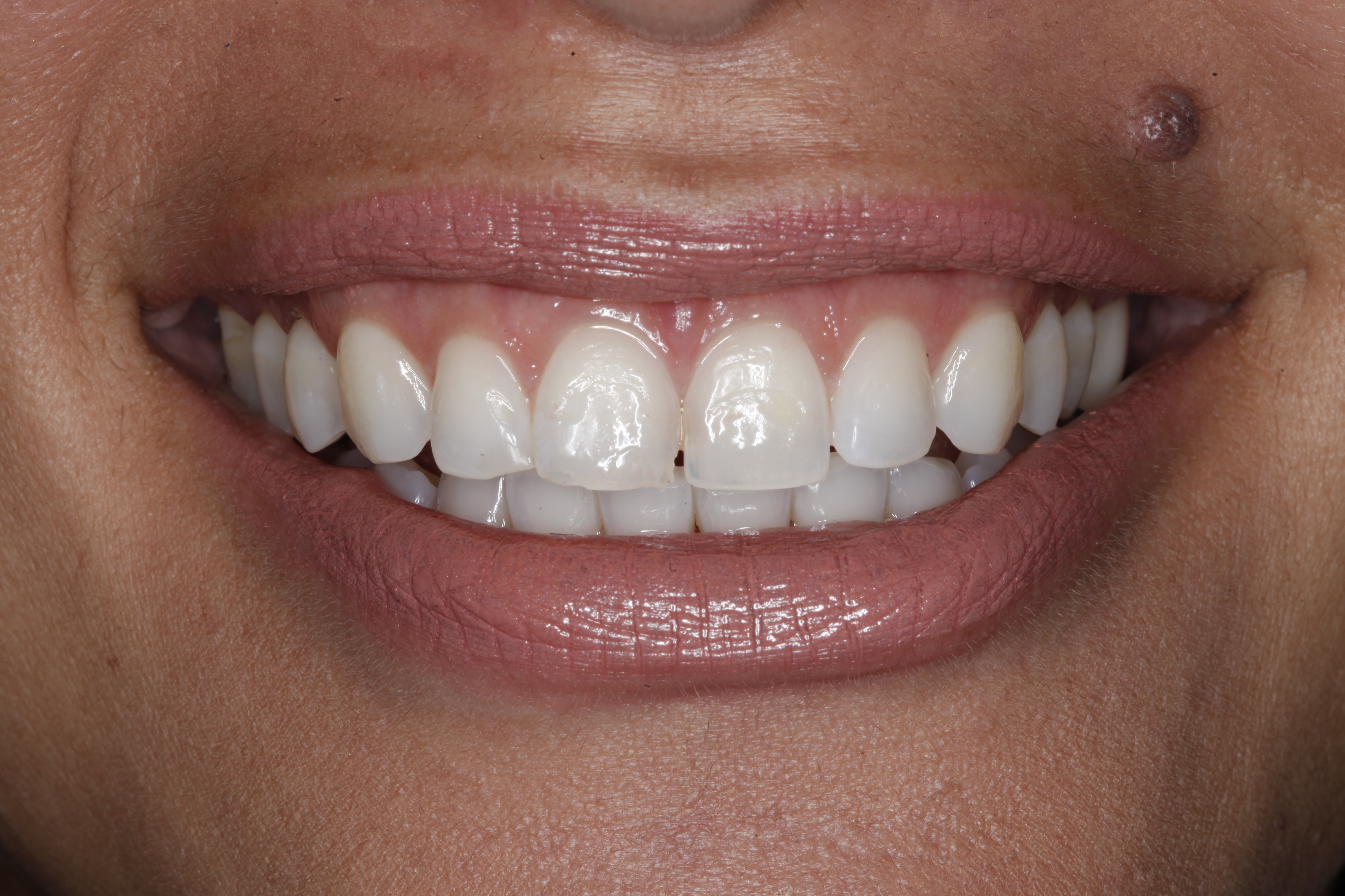 Denver Perfect Smile fixed by best Denver cosmetic dentist