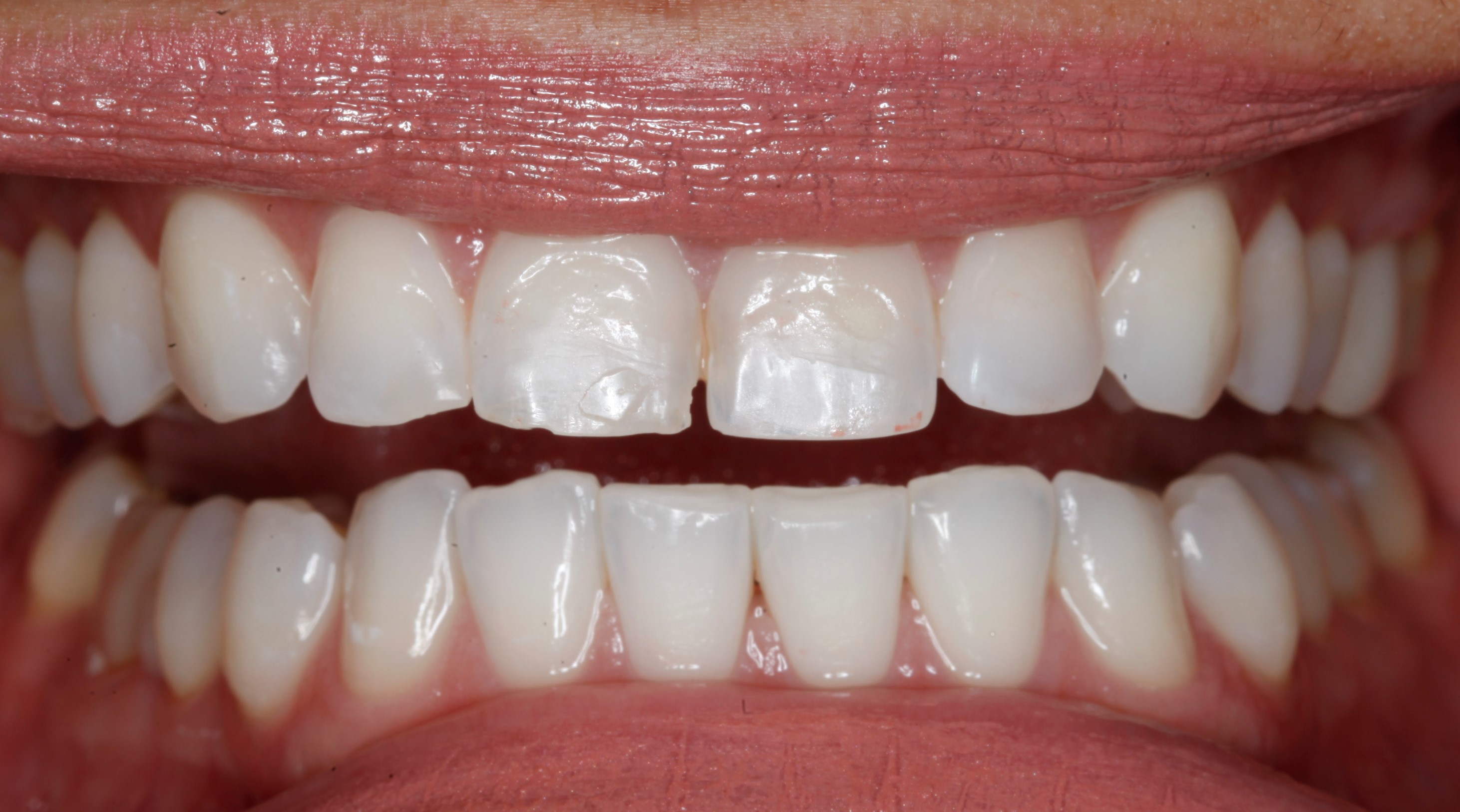 Best cosmetic dentist in Greenwood Village tooth colored fillings