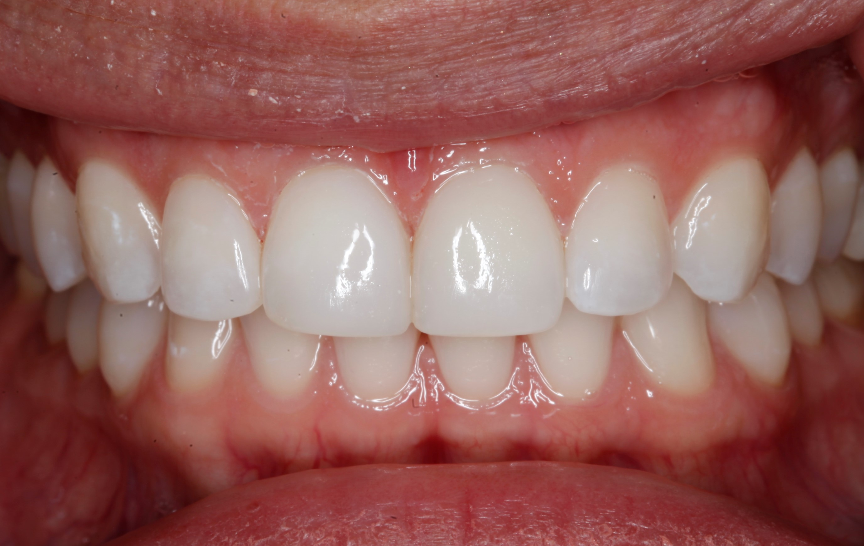 Best cosmetic dentist in Denver tooth colored fillings