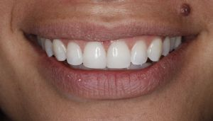 Smile fixed by best Greenwood Village dentist