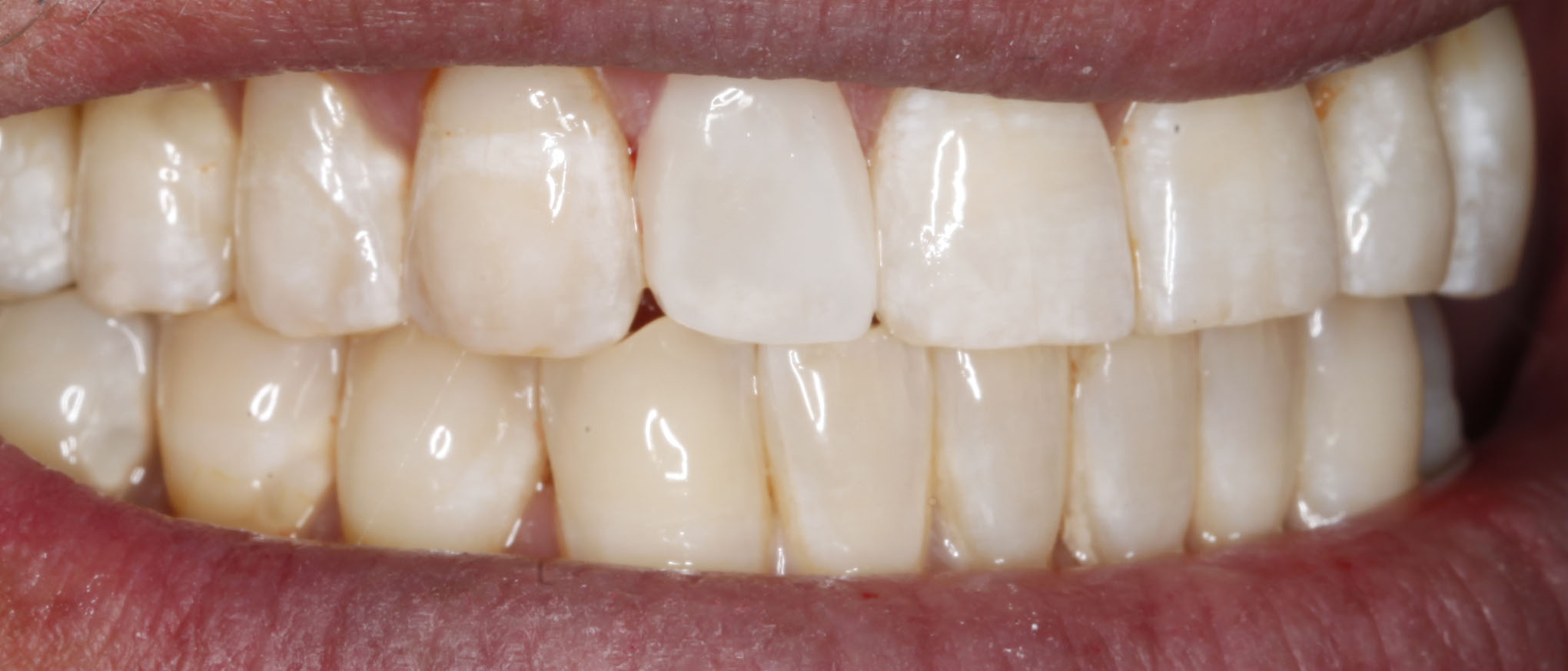 best cosmetic dentist in Denver fixes peg lateral with veneer tooth colored filling