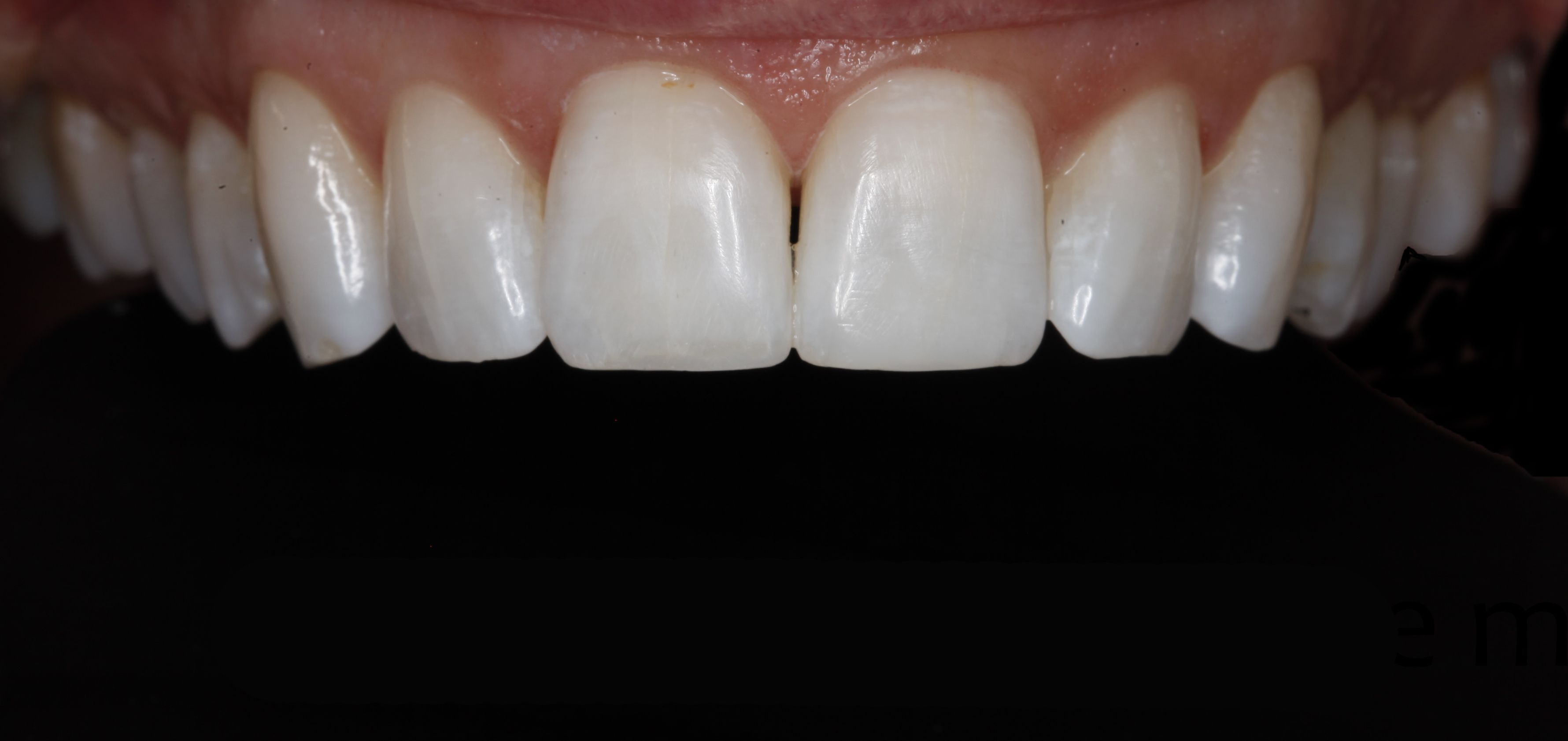 Greenwood Village Best Dentist cosmetic dentistry for chipped teeth
