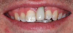 dental implants smile