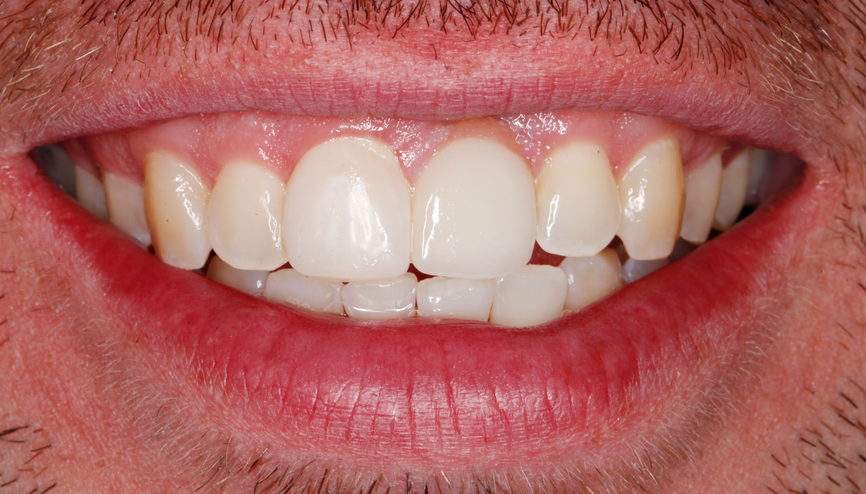 Best cosmetic dentist Greenwood Village Cosmetic Dental Implant Crown After