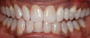 Replace Missing Tooth replaced with best cosmetic dentist in Denver and Greenwood Village
