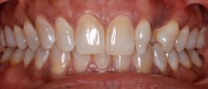 Complete perfect smile with best Denver and Greenwood Village cosmetic dentist
