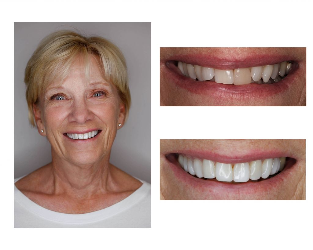 Smile Makeover Greenwood Village Cosmetic Dentistry