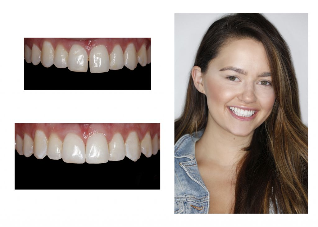 Smile dental cosmetic bonding Greenwood Village dentist