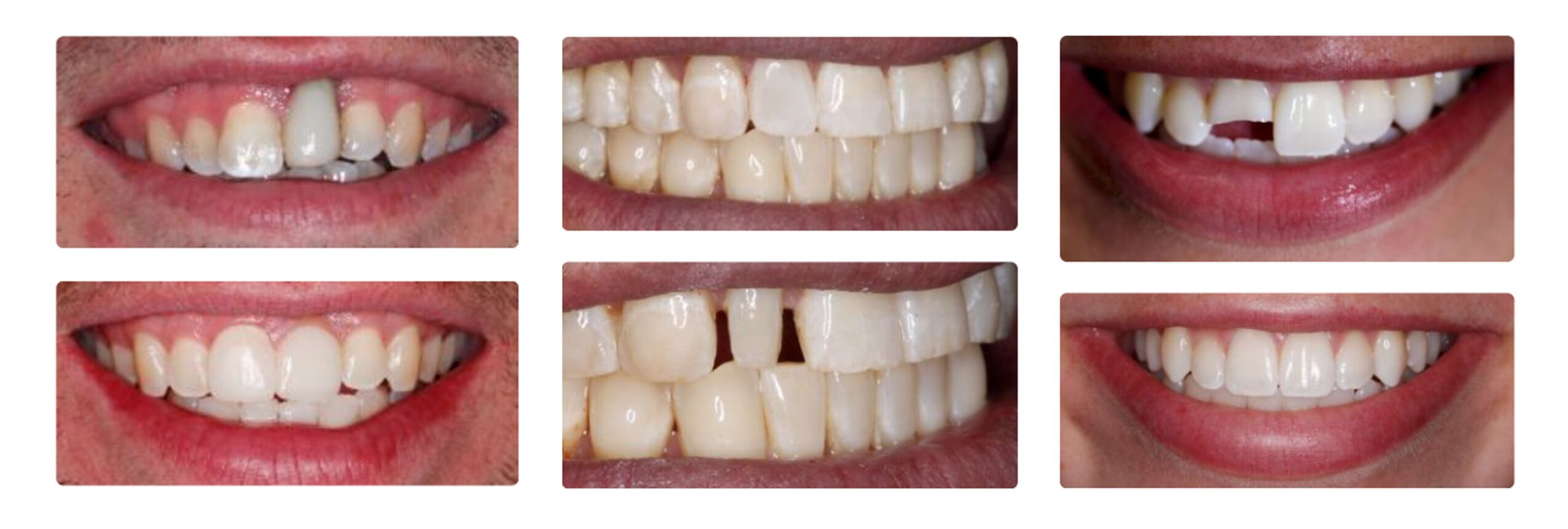 Before and after dentist Greenwood Village