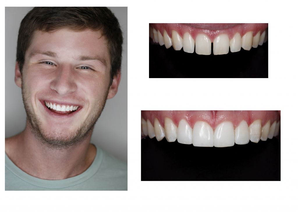 New Smile dental bonding Greenwood Village dentist