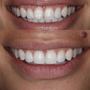 Dental veneers bonding in greenwood village best dentist