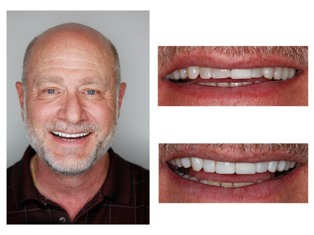 crown bonding cosmetic dentist Greenwood Village colorado