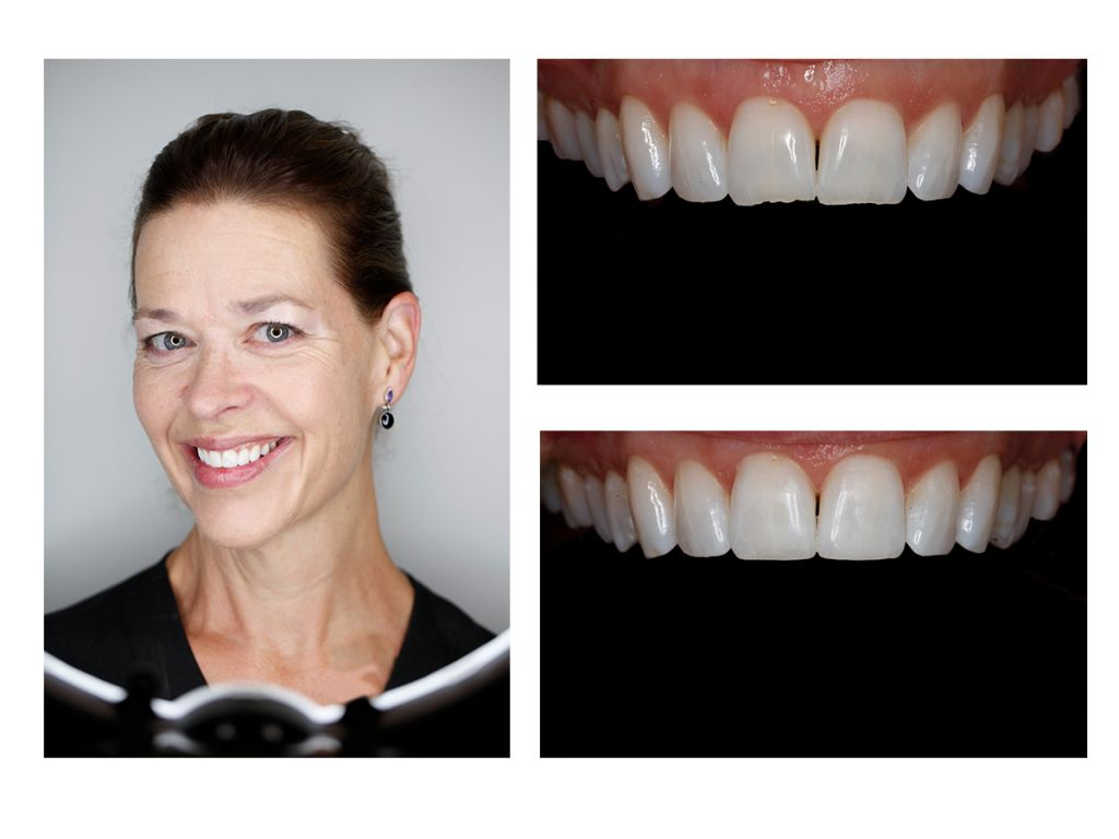 cosmetic bonding dentist Greenwood Village