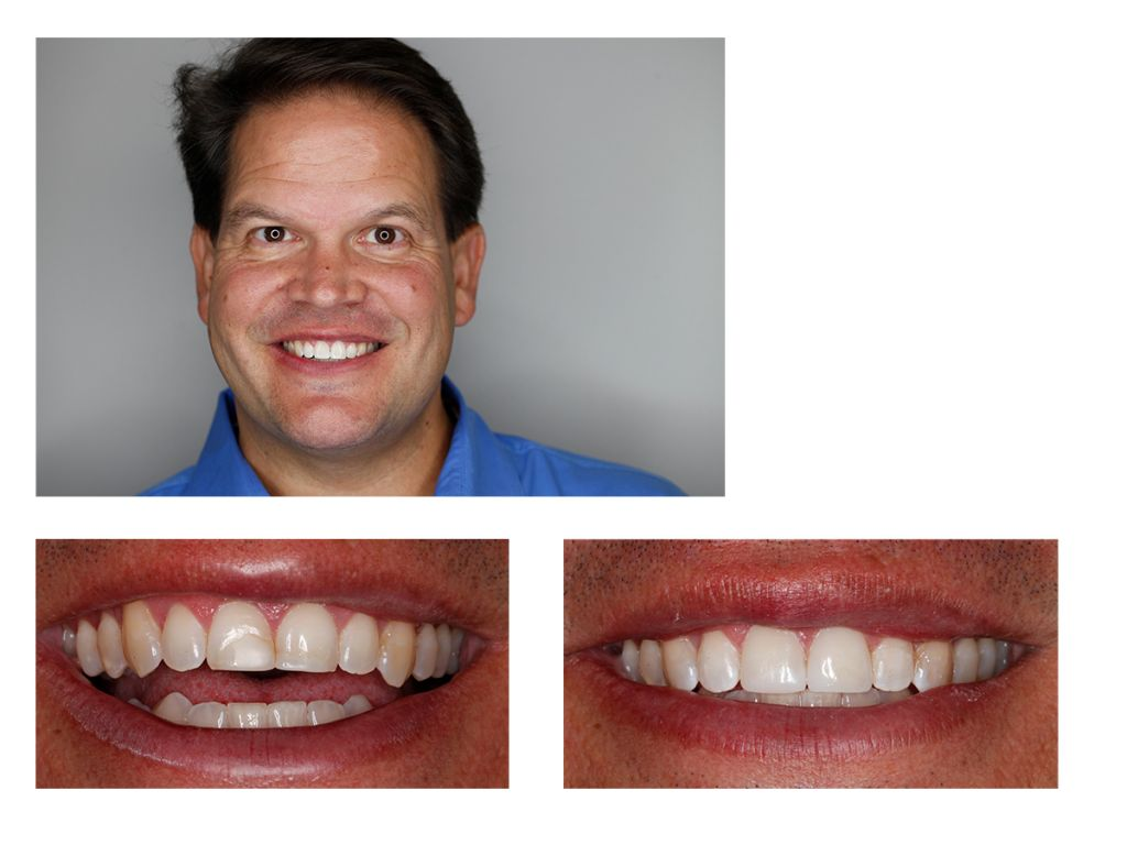 dentist broken tooth Denver and Greenwood village