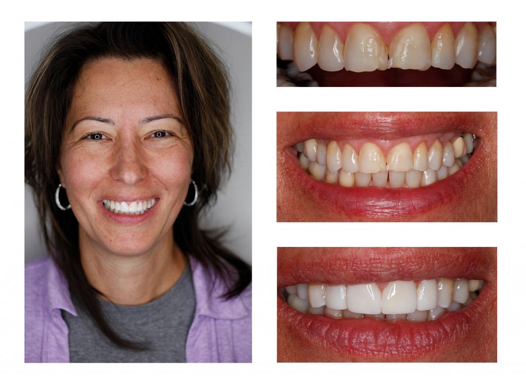 veneers dentist Greenwood Village